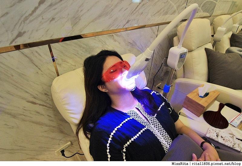 Dr.Min美齒專家 台中美白牙齒 美白牙齒 美齒專家 牙齒美白推薦6