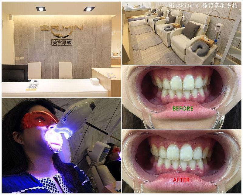 Dr.Min美齒專家 台中美白牙齒 美白牙齒 美齒專家 牙齒美白推薦0